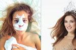 Andrea Bezděková necelé tři měsíce od získání korunky krásy podstoupila plastiku nosu.