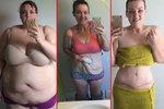 Mallory se snažila zhubnout celý život. Pomohla jí ale až bariatrická operace.