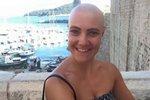 Emma přišla o vlasy kvůli nemoci alopecii.