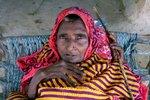Indická žena se zmenšila do velikosti batolete. Doktoři netuší proč