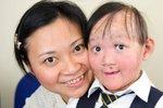 Nemoc motýlích křídel jí ničí život: Každý dotek pro malou dívku znamená utrpení