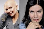 Anna K. o boji s rakovinou prsu: Vlasů mám půlku. Ale mám je!