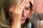 Lupy, natržené koutky nebo červené dlaně: 25 signálů, že tělo potřebuje pomoc