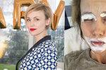 Herečka Vlastina Svátková: Brutální alergická reakce! Takhle dopadla...