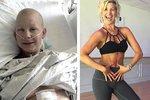 Silná Emilee na fotografii během rakoviny a po ní. To je proměna!