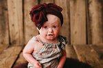 Vzácné onemocnění malé Anny,výrazně ovlivňuje její život.