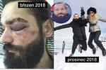 Zmlácený kadeřník hvězd Zapomněl: Útočníci bez trestu, on zaplatil 100 tisíc!