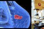 Nový mamograf v Brně: Rakovina v prsu svítí červeně
