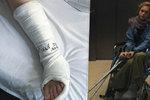 Geislerovou upoutalo zranění na vozíček! Pak s ním uvízla ve výtahu
