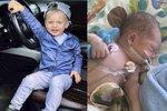 Sebastián se narodil bez konečníku. Následující dva roky života podstupoval náročné operace.