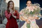 Modelce Chelsea Werner Downův syndrom ve štěstí ani v úspěchu nikdy nepřekážel.