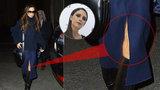 Nikdo není dokonalý: Victoria Beckham ukázala nehezky svraštělou kůži na koleni