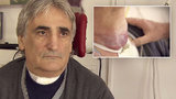 Milan (59) s rakovinou hrtanu z Nemocnice Motol: Nádor už ho dusil!