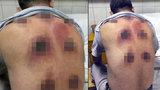 Baňková terapie se zvrhla v horor, muž má na těle 7 hnisajících ran