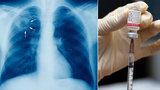 Světu hrozí epidemie tuberkulózy. Léky na ni přestávají fungovat