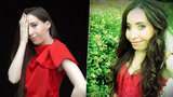 Ivana se narodila s půlkou tváře. Nyní podstoupila operaci. Skončí i šikana?