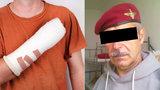 První den v práci si uřízl čtyři prsty: Neměl smlouvu, soud dal Alojzovi naději na odškodné