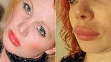 Irská herečka (39) žaluje pražskou kliniku kvůli zpackané plastice: Chce 200 tisíc korun!
