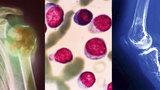 Spalujete v kamnech PET lahve? Zákeřný nádor vám může rozložit kosti zevnitř