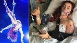 Sexy akrobatka, která se ráda vyprsuje: Při hororovém pádu si zlomila klíční kost