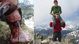 Turistu v Karpatech napadla medvědice: Šelmu přepral a zachránil si život