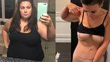 'Měla tolik kůže navíc, že ji čeká už pátá operace! Mladá lékařka se bála, že zemře'
