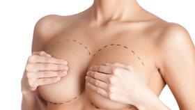 Nezanedbávejte prevenci: Žena chtěla silikony, zjistili jí rakovinu prsu