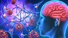 Neškodné zapomínání, nebo velký problém? Psycholožka promluvila o demenci
