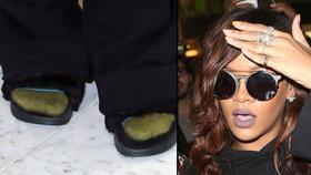 Rihanna tentokrát šlápla vedle: Vytahaný vak a ponožky v pantoflích!