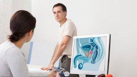 Rakovina prostaty ohrožuje stále více Čechů. Pacienti jsou čím dál mladší