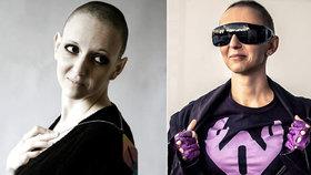 "Lucie se rok prala s rakovinou ""kundorakem"": Teď ji nemoc zabila…"