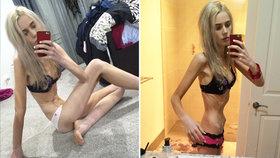 Anorektička (17) vyhladověla kvůli popularitě na 35 kilo. Od smrti ji dělily hodiny