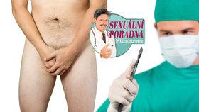 Sexuální poradna: Chtějí mě obřezat, ale já se obřízky bojím!