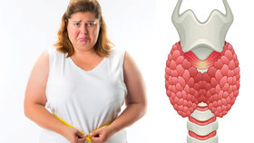 Může za tloustnutí, problémy se srdcem i nemožnost otěhotnět: Pozor na poruchu štítné žlázy!