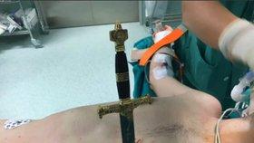 Neuvěřitelné video: Chirurgové vytáhli meč z hrudi muže a zachránili mu tak život