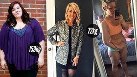 Lesbická zpěvačka zhubla 87 kg, zůstala jí ale nepěkná převislá kůže