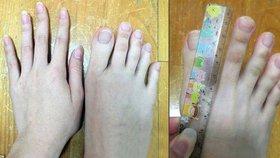 Číňanka se pyšní bizarní anomálií: Na nohou má »pařáty« dlouhé 5 cm