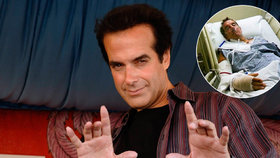 David Copperfield má problém: Jeho »kouzlo« skončilo poraněním mozku!