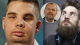 Muž, kterému český chirurg vrátil obličej: Život mi zachránil smysl pro humor!
