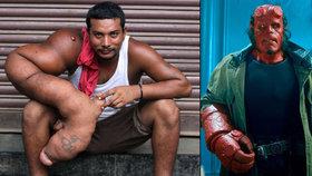 Muž má ruku jako Hellboy, jeho končetina váží 20 kilo