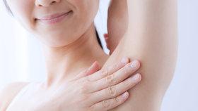 Vyzkoušeno: Botox do podpaží zabrání pocení na celý rok
