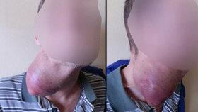 Muži z Řevnic vyrostla na krku obří boule: Nemohl kvůli ní dýchat