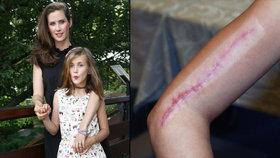 Dcera Bernáškové z Vyprávěj: Děsivá jizva na ruce. Co se jí stalo?