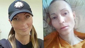 Krásná policajtka zemřela na tuberkulózu poté, co jí plivl do obličeje nakažený kriminálník