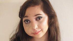 Dvanáctiletá dívka se znetvořeným obličejem natáčí videa a ukazuje všem, jak se pere s osudem!