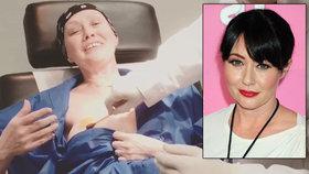 Brenda z Beverly Hills na šokujícím videu z operace: Odhalila ňadro a natočila zákrok