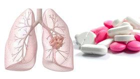 Proti rakovině plic pomáhá kuřákům brufen, ukázala studie. Jako prevence