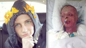 Takhle teď vypadám, chlapec popálený na 90 % těla zveřejnil svou fotku! Reakce byly šokující