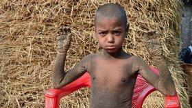 Chlapec (8) se kvůli nemoci mění postupně v kámen: Šupinatá kůže a silná bolest