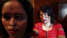 Po narození jí chrstli kyselinu do obličeje: Stanu se lékařkou, říká 14letá dívka
